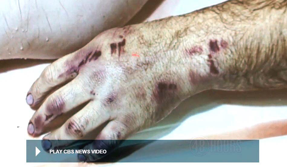Autopsy photo of victim's left hand after removal of the excess blood. Six or more separate impact blows from the weapon can be discerned. Modified still from CBS news video.