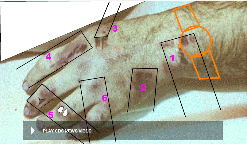 Photo of victim's right hand with the same numbering for the six injury locales as depicted in the article seven on the victim's injuries. One added feature is an orange outline of a wrist watch to correspond with the Timex watch believed to have been worn by the victim at the time of the attack. Also added are rectangular outlines to reflect how a rectangular object with certain protruding and sharp edge features along its thickness could have induced injuries 2 through 6. Injury 1 could have been mostly induced from an impact to the watch which caused the watch stem and band connector features to dig into the skin and induce most of the injuries at this location. The rectangular outline could have been drawn the same width in all but they were drawn at varying widths since the actual weapon width is unknown. Modified CBS News photo.